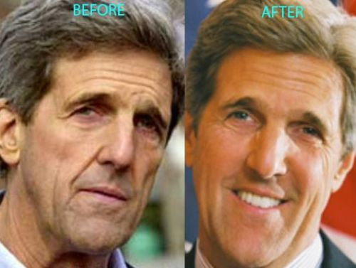 John Kerry plastic surgery before after