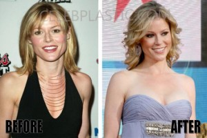 Julie Bowen Plastic Surgery – Fraxel Accepted