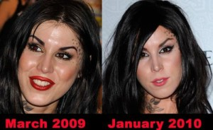 Kat Von D Plastic Surgery is a Truth or Are Artistic Skills at Play?