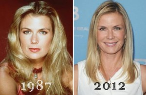 Katherine Kelly Lang Plastic Surgery – True Or Just Rumors?