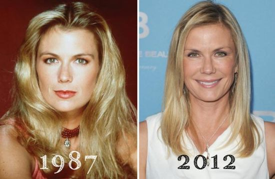 Katherine Kelly Lang plastic surgery before and after photo