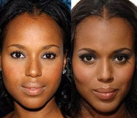 Kerry Washington plastic surgery photos