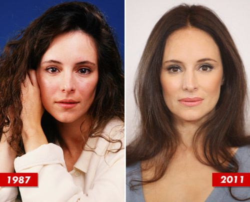 Madeleine Stowe plastic surgery before after