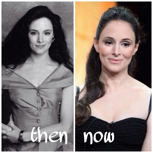 Madeleine Stowe plastic surgery photo