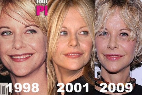 Meg Rryan plastic surgery before after photos