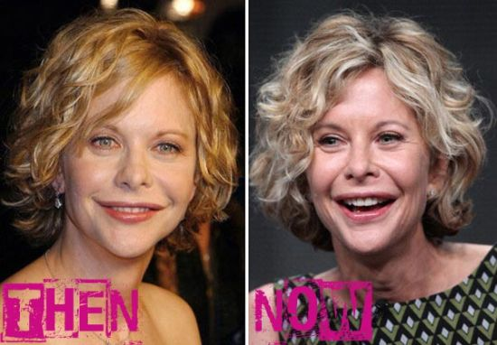 Meg Ryan then and now