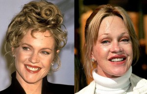 Melanie Griffith Plastic Surgery Epic Fail!