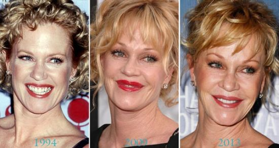 Melanie Griffith plastic surgery photos