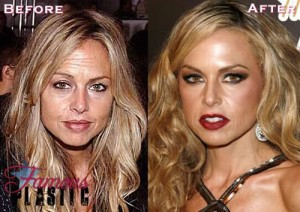Rachel Zoe Plastic Surgery is Well Executed