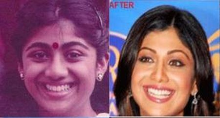 Shilpa Shetty plastic surgery before after