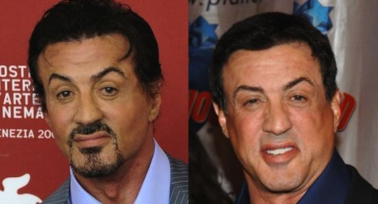 Sylvester Stallone plastic surgery before and after