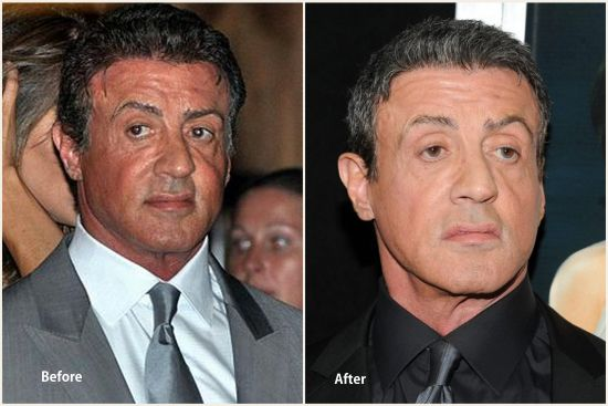 Sylvester Stallone plastic surgery photo