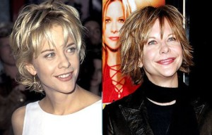 Meg Ryan Plastic Surgery – Classic Example of Bad Surgery