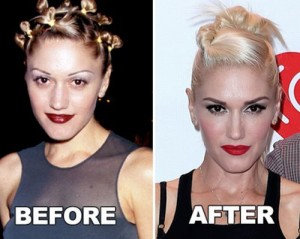 Gwen Stefani Plastic Surgery: The Transformation That Made Look Great