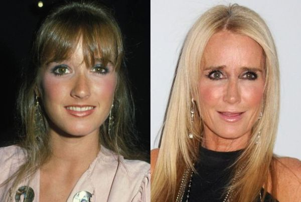 Kim Richards then and now