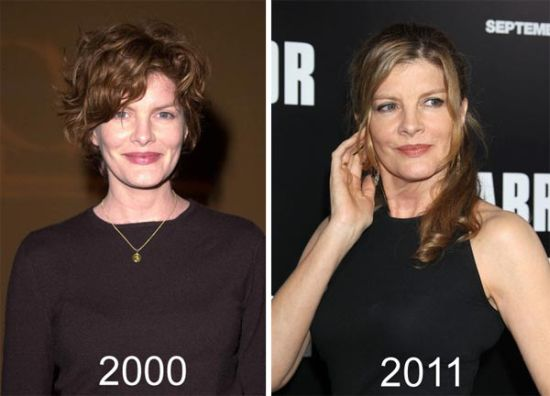 Rene Russo plastic surgery before and after